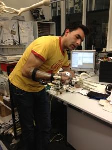 Intelligente Armprothese